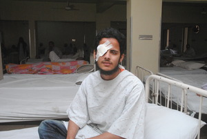Athar after corneal grafting