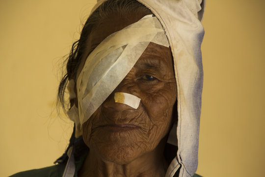 After eye surgery