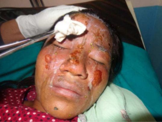 Manita Tamang, 15 yrs - Burns from scalding water