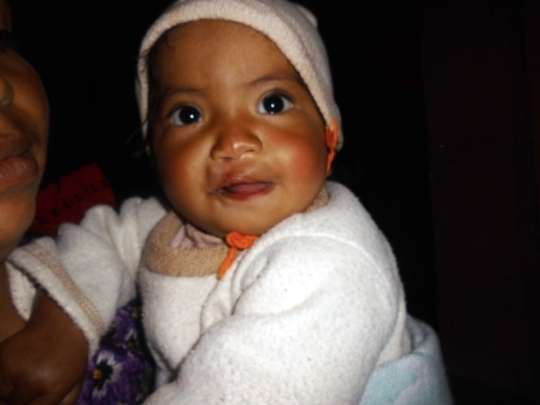 Vidalia after her first surgery