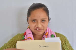 Susana before surgery
