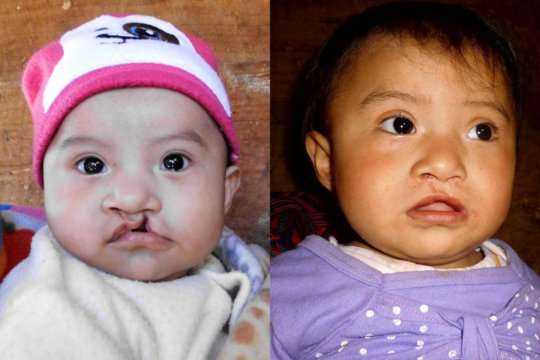 Astrid, before and after