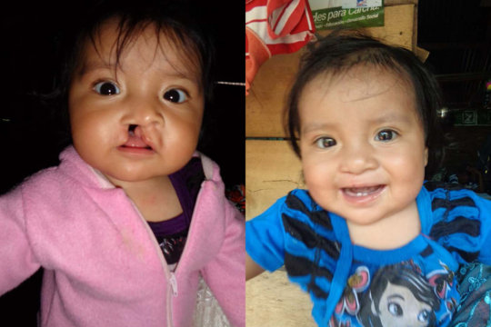 Elda, before and after