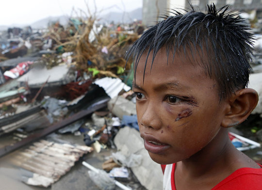 A boy who was wounded by flying debris