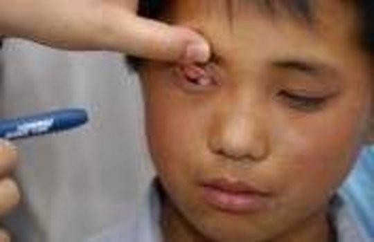 Help blind children in Inner Mongolia, China
