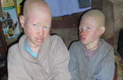 Help 10 Albino Children Saved from Sacrifice