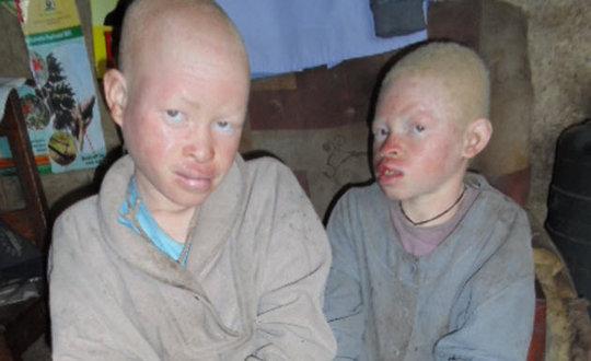 Help 10 Albino Children Saved from Sacrifice
