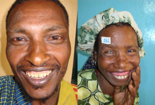 Patients in Western Ethiopia