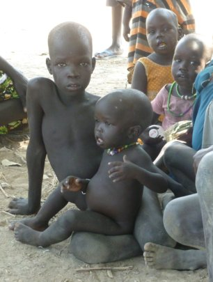 Little Akol was in desperate need of help...