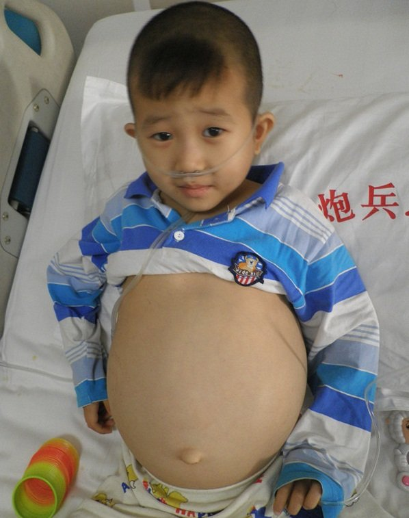 Medical Fund for Needy Chinese Children