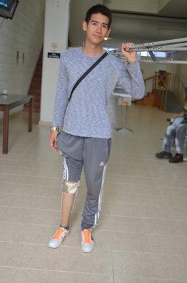 Carlos celebrating No More Crutches!