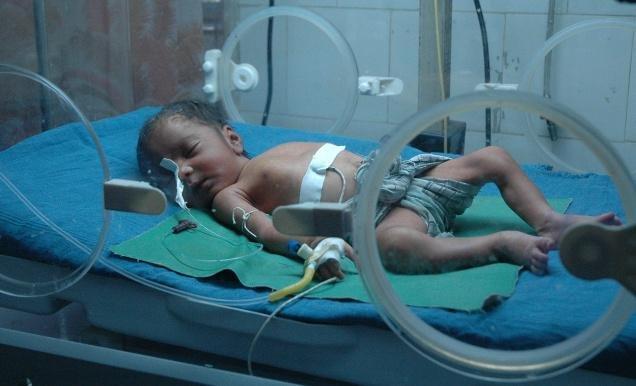 Baby Incubators Needed in India