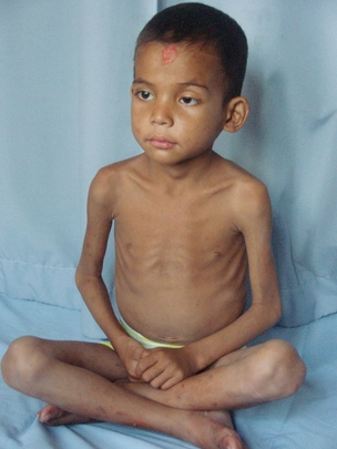 photos from rescue children suffering from severe