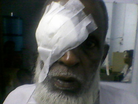 An elderly patient after a free cataract surgery