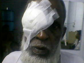 A patient after a free cataract operation.