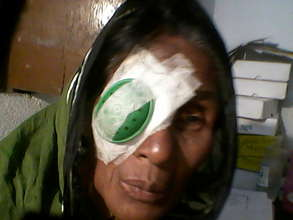 patient after successful cataract surgery