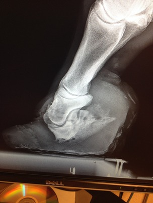 X-ray of Gracie's hoof and coffin bone