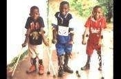 Treatment for 100 youth with disabilities in Congo