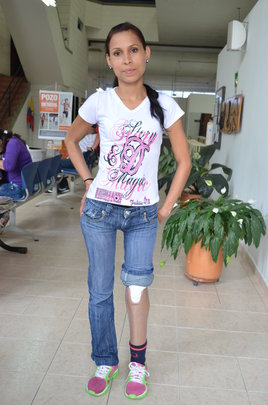 Luz showing off her new leg!