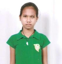 She is Judy Ann Salazar before the operation