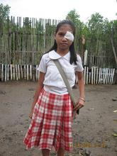 After Judy Ann's eye operation