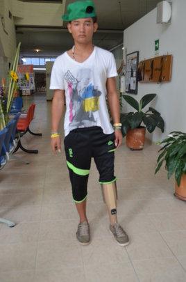 David and his new leg!