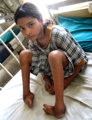 Birmala before treatment
