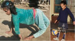 Before and after - now Shanti even plays soccer!