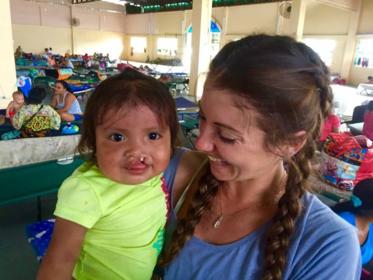Partner with Operation Smile: Cleft Lip/Palate