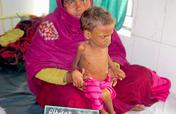 To Save Severe Malnourished Children in Bihar.