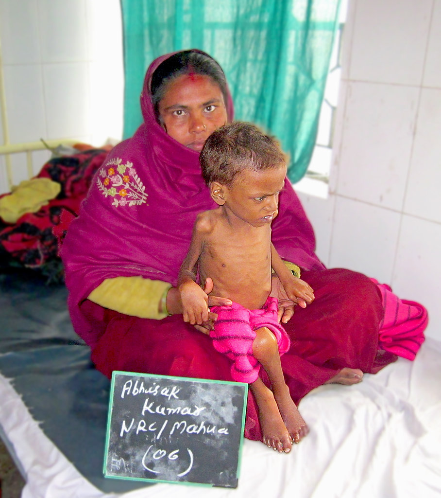 To Save Severe Malnourished Children in Bihar.