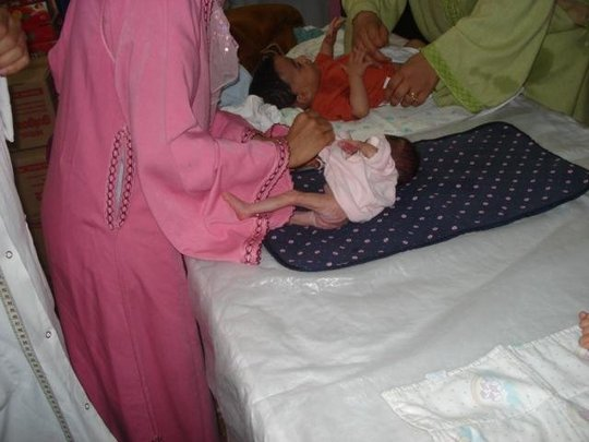 Fight Against Infant Mortality - 300 babies/year