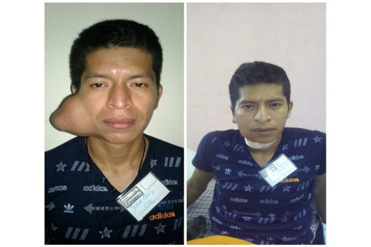 Juan, before and after his surgery