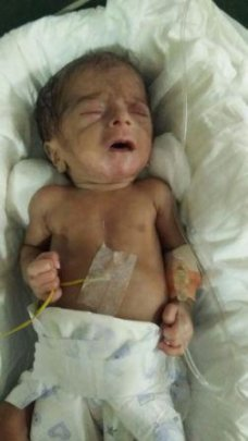 29 weeks old female baby treated for ROP
