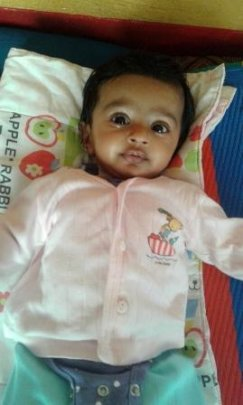 2 weeks female baby treated for ROP