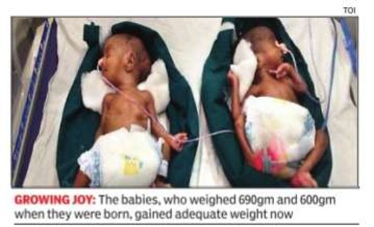 Smallest twins to survive in a non metro hospital