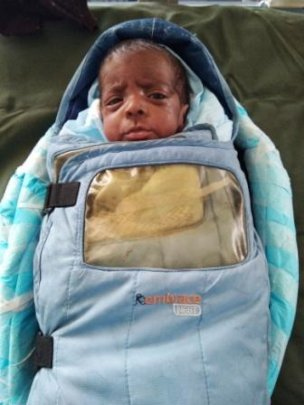 7 months male baby treated for ROP