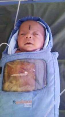 9 weeks old female baby treated for ROP