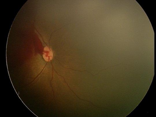 fundus image of pre retinal haemorrhage