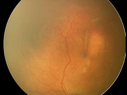stage 2 ROP fundus photo