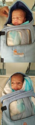 twin babies treated for ROP