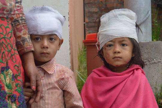 Children with cotton bandages