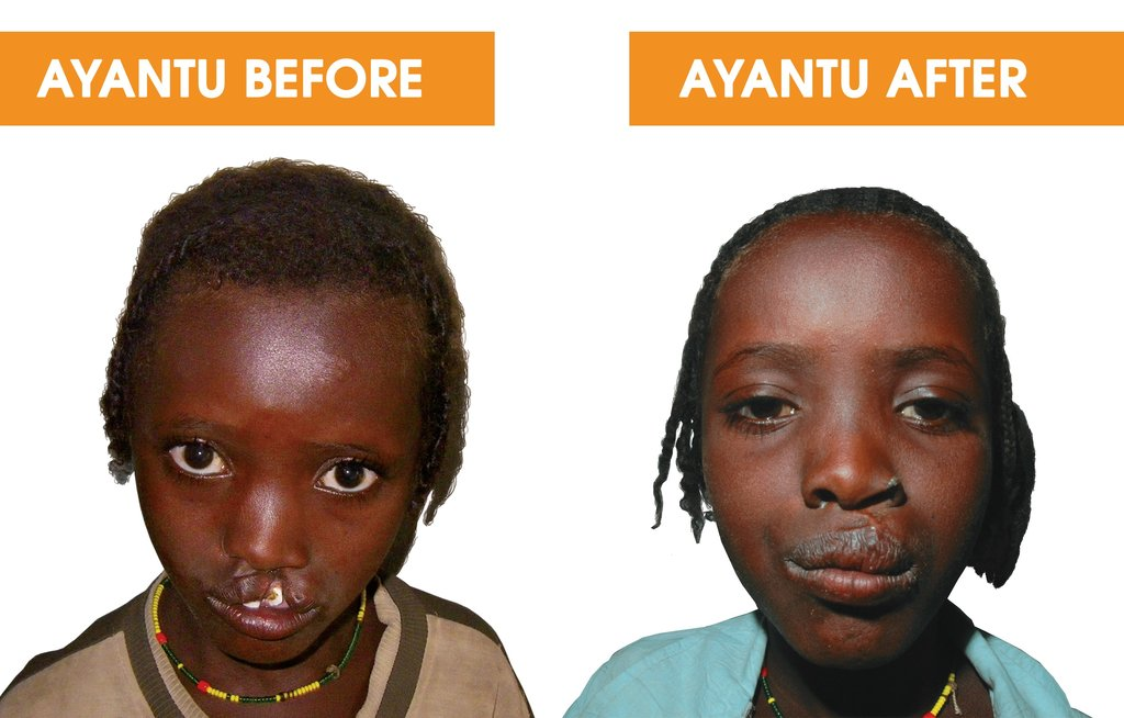 Help 40 Ethiopian Children with Cleft Conditions