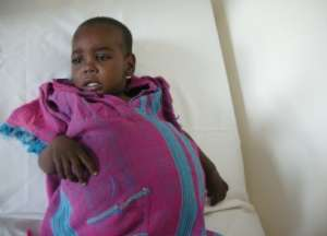 Musab before operation