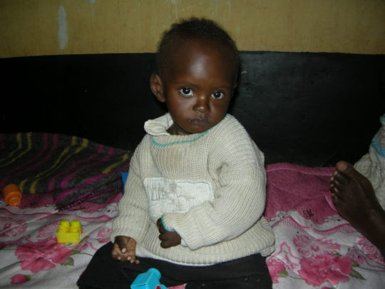 Jecinta after fully recovering from Malnutrition