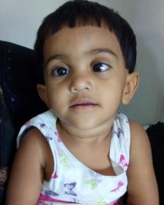 child operated for strabismus