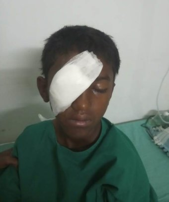 10 yr old boy operated for top injury