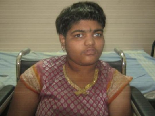 15 yr old operated for cataract
