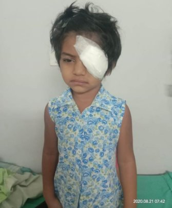 4 yr old child operated for chemical injury