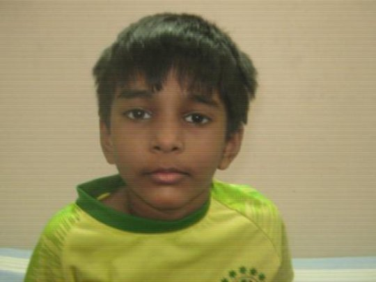 5 yr old boy operated for zonular cataract